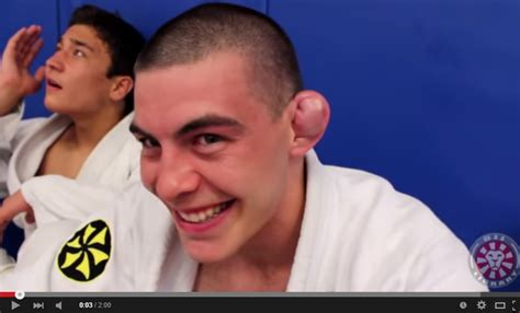 cauliflower ear saulo ribeiro drain a cauliflower ear