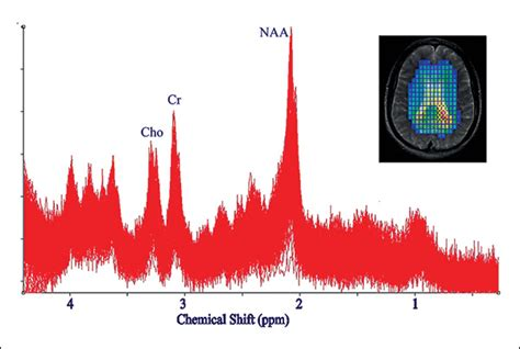 n acetylaspartate creatine how whole brain 3 d magnetic resonance spectroscopy is