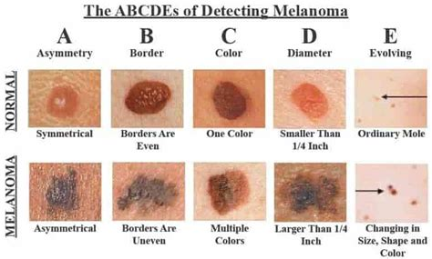 Melanoma On The Breast Pictures