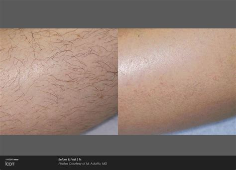 image gallery laser hair removal legs