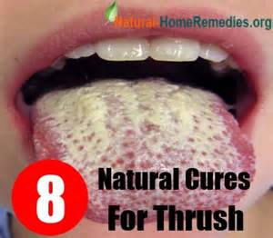 thrush home remedies is candida overgrowth linked to diabetes health guide