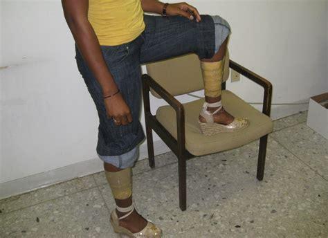 file drug mule legs jpg wikimedia commons