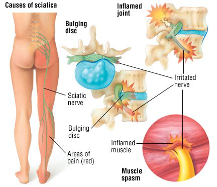 nerve pain causes nerve pain thighs it s just a bad day avn knee psoriatic arthritis