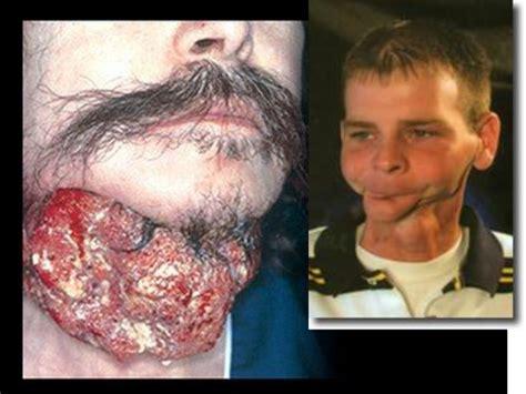 imagenes fuertes sobre el tabaquismo 06 tabaquismo