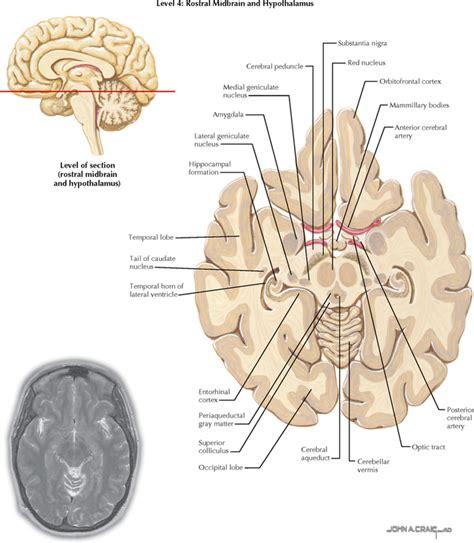 Axial Section by Telencephalon Neupsy Key