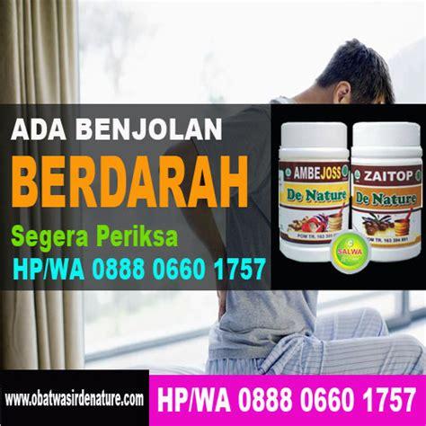 Obat Herbal Wasir Tanpa Operasi obat ambeien tanpa operasi toko herbal toko