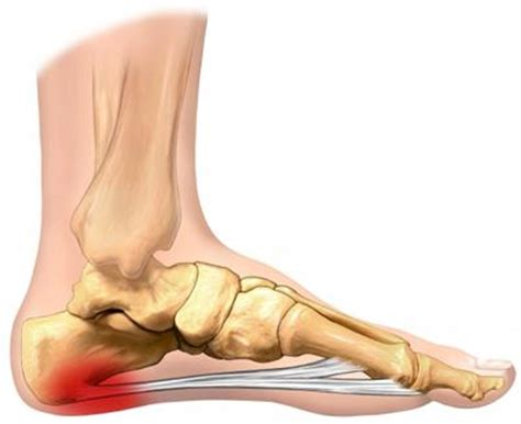 What Is Planter Fascitis by What Causes Plantar Fasciitis And Heel