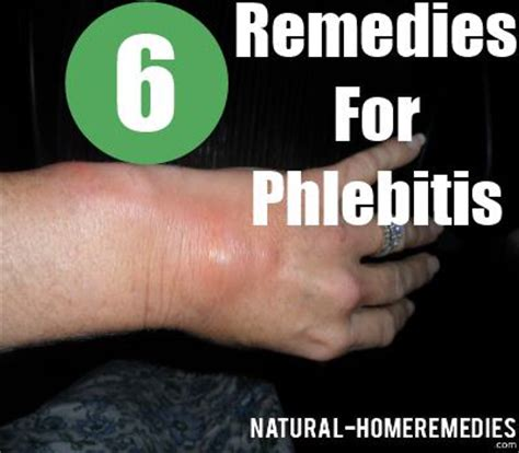 6 home remedies for phlebitis prevent blood clots