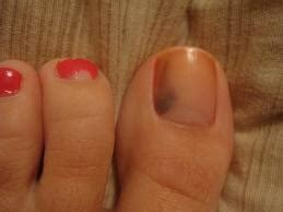 toe cancer 60 best skin cancer information images on cancer safety and security guard