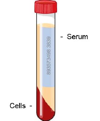 c protein in blood serum protein electrophoresis general vca animal hospital