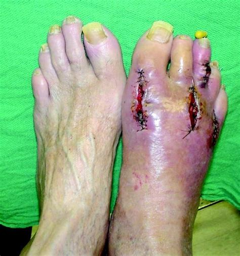 how to treat wounds how to detect and treat infected wounds podiatry today