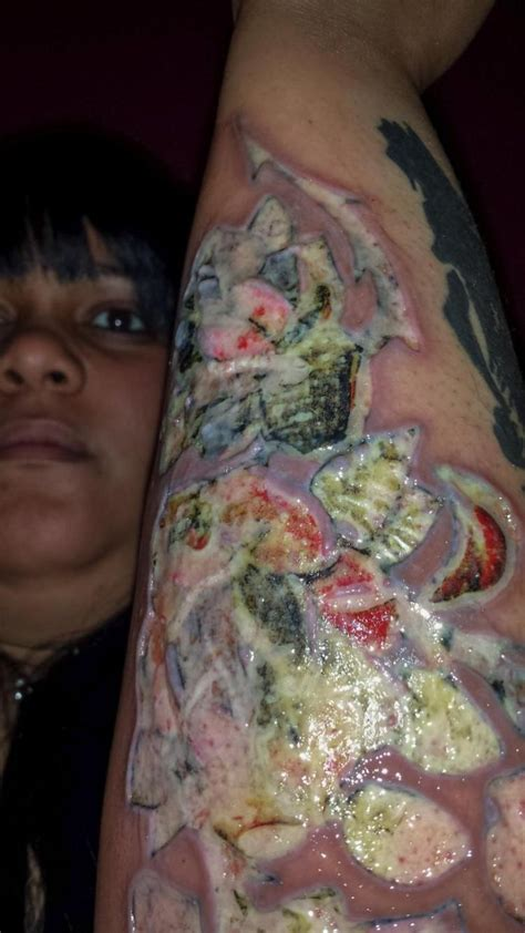 tattoo needle infection exclusive woman sues harlem tattoo shop after infection