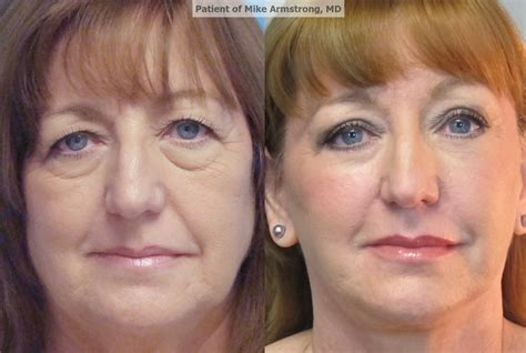 surgery cost how much does eye bag surgery cost style guru fashion glitz style unplugged