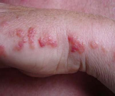 bed bug bite marks bed bug bite marks body pictures treatment free brochure