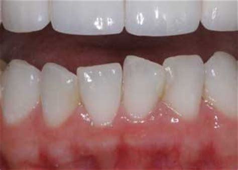 healthy gum color stages of periodontal or gum disease cosmetic dentist