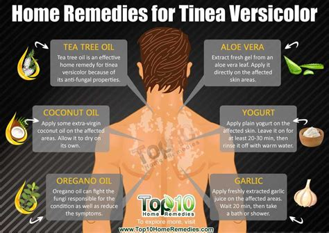 More Home Remedies For Common Problems 2 by Home Remedies For Tinea Versicolor Fungal Infection