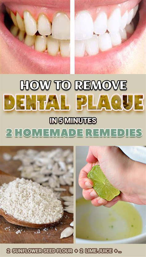 remove dental plaque   minutes