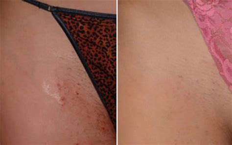 brazilian laser hair removal pictures before after full wax photos hairstylegalleries com