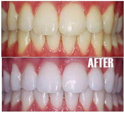 Pulling To Naturally Whiten Teeth Detox And Improve Skin by 1000 Images About Perlacoco Pulling Reinvented On
