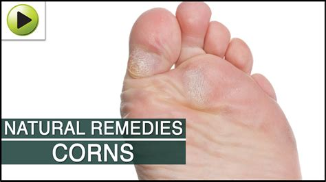 top home remedies for corns on how to treat corns and