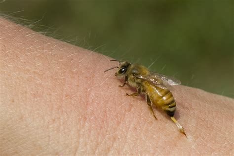 bee sting on a black honey bee sting