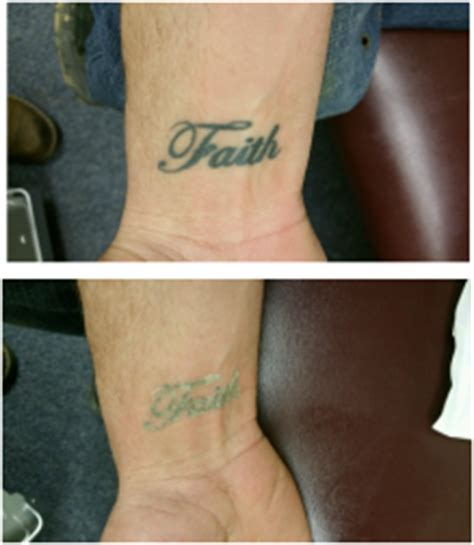 laser tattoo removal pittsburgh welcome to elimination station laser removal