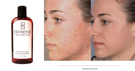 top glycolic acid peel at home on glycolic peels