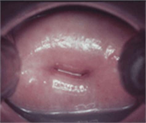 portio uterina studio gyn consulting