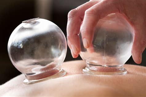 cupping treatment carol krieger acupuncture