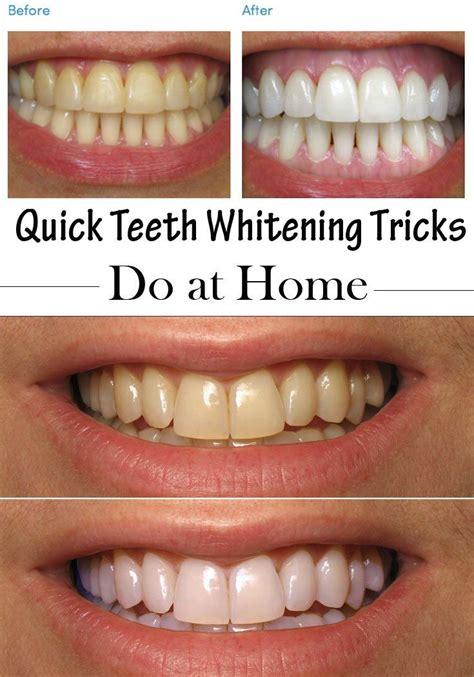quick teeth whitening tricks    home teeth home
