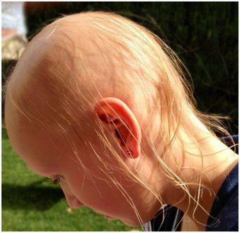 alopecia areata causes alopecia areata cure pictures causes treatment