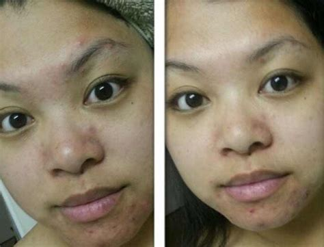 Acne Malam Acne Green Tea green tea for acne mask benefits how to use before and