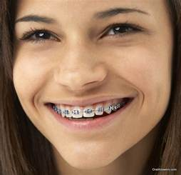 light blue braces 60 photos of teenagers with braces answers