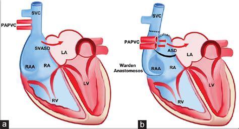 warden procedure diagram warden repair for superior sinus venosus atrial septal