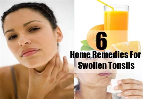 swollen tonsils home remedies treatments and cures