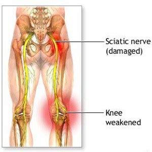 nerve pain causes nerve pain thighs reasons for leg pain men s magazine
