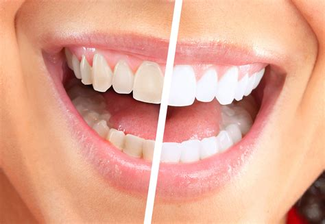 teeth whitening dentist  istanbul