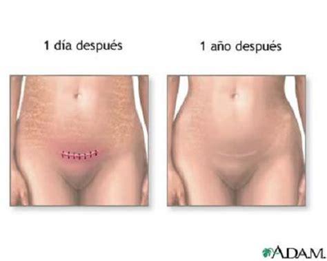 c section scar healing las grapas causan m 225 s complicaciones que la sutura en la