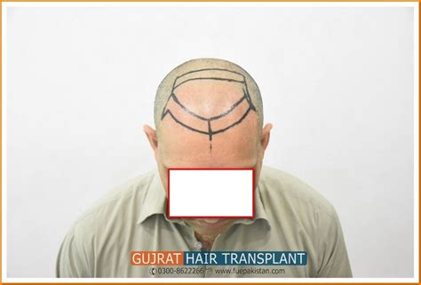 new technology in hair restoration 2014 latest fue prp hair transplant technology in pakistan