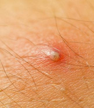 ingrown hair has puss infected ingrown hair with pus bumps pimples acne