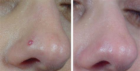 brufoli interni brufoli nel naso rimedi