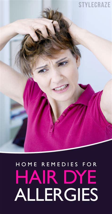 Home Remedies For Hair Dye Allergy