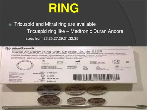 Kunci Ring 25 X 28 Ats managment dvr surgery