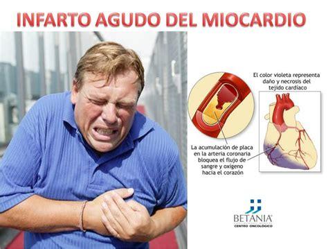 l infarto del miocardio medicina cultural infarto agudo del miocardio