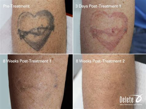 laser hair and tattoo removal real results with the advanced picoway removal
