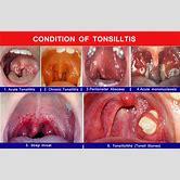 pharyngitis-vs-tonsillitis