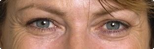 botox hereford wrinkle removal