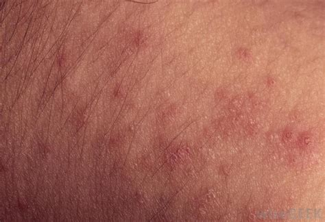 bed bug rash picture how can i treat bed bug rashes with pictures