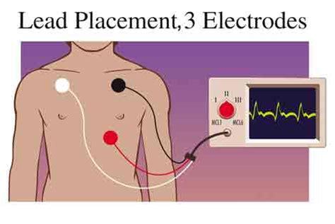 pediatric lead placement diagram pediatric lead placement diagram pediatric 3 lead