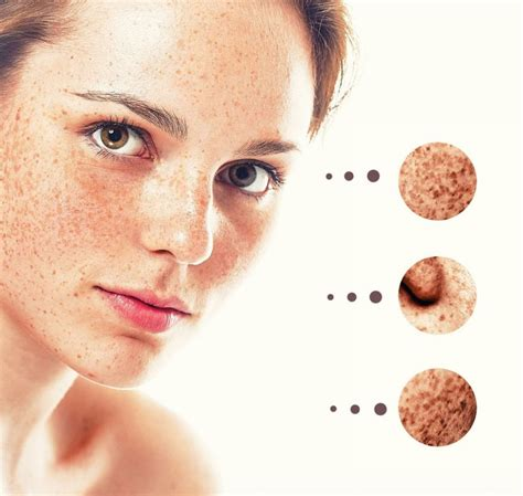 How To Get Rid Of Acne Scars by 18 Home Remedies On How To Get Rid Of Acne Scars Fast